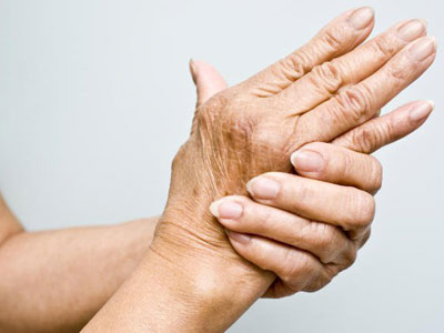 ¿Qué es la artrosis y a quién afecta?