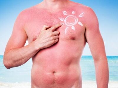 Cómo prevenir o actuar frente a quemaduras en la piel